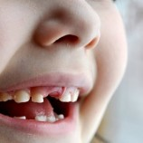 Begini Tips Cara Mencegah Gigi berlubang